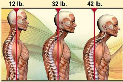 Forward Head Posture Causes Weight of Head to Increase