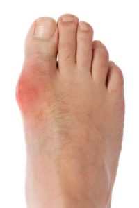 Gout Pain Relief from Baker Chiropractic and Wellness