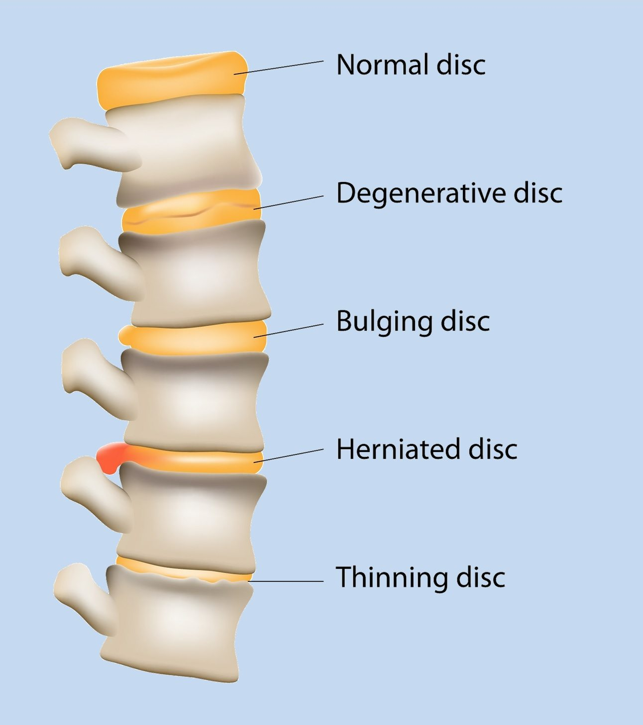 Cincinnati Ohio Degenerative Disc Disease Disk Disorder