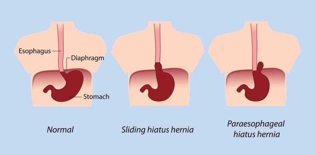 Hiatal hernia causes and symptoms