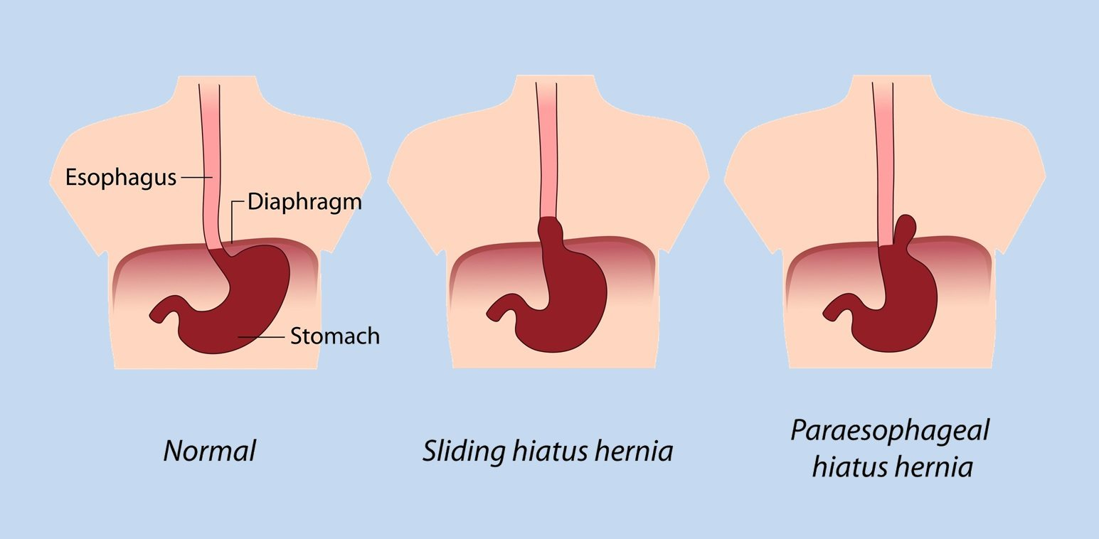 Hiatal Hernia Symptoms Relief No Surgery Ohio on upper back pain