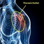 Thoracic Outlet Syndrome TOS