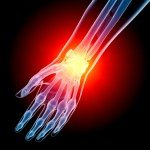 Hand Pain, Wrist Pain, Foot Pain and Ankle Pain